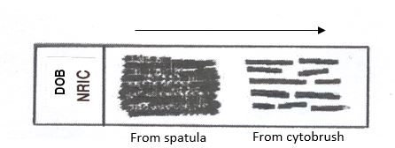 Cytobrush and Spatula Protocol.JPG