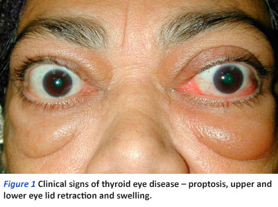 Thyroid Eye Disease A Brief Overview Singapore General Hospital
