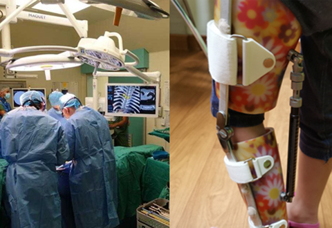 Complete orthopaedic care, safer surgeries for minors with zero intraoperative radiation