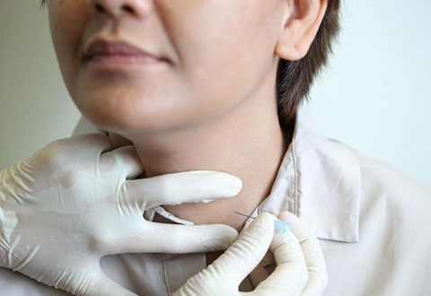 Thyroid disorders can be managed with diet, exercise
