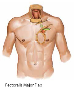 Pectoralis Major Flap - SingHealth Duke-NUS Head and Neck Centre