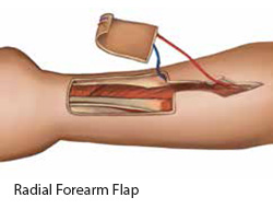 Radial Forearm Flap - SingHealth Duke-NUS Head and Neck Centre