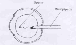In-Vitro Fertilisation (IVF) injecting single sperm into an egg - KKH